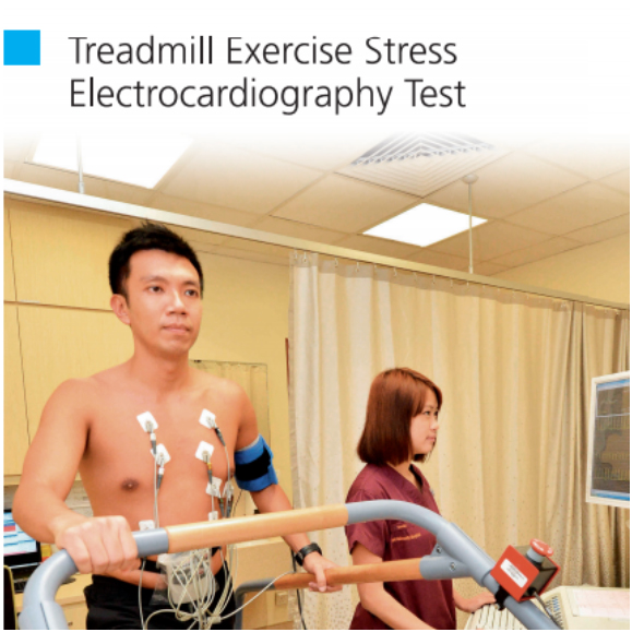 Treadmill Exercise Stress Electrocardiography Test
