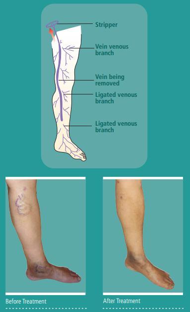 Varicose Veins - NUHCS | National University Heart Centre